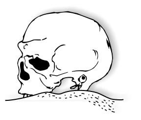 Extreme remodeling skull